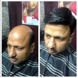 Hair Bonding service in bhubaneswar