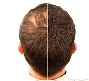 hair-fixing before after photo in hair fix solutions