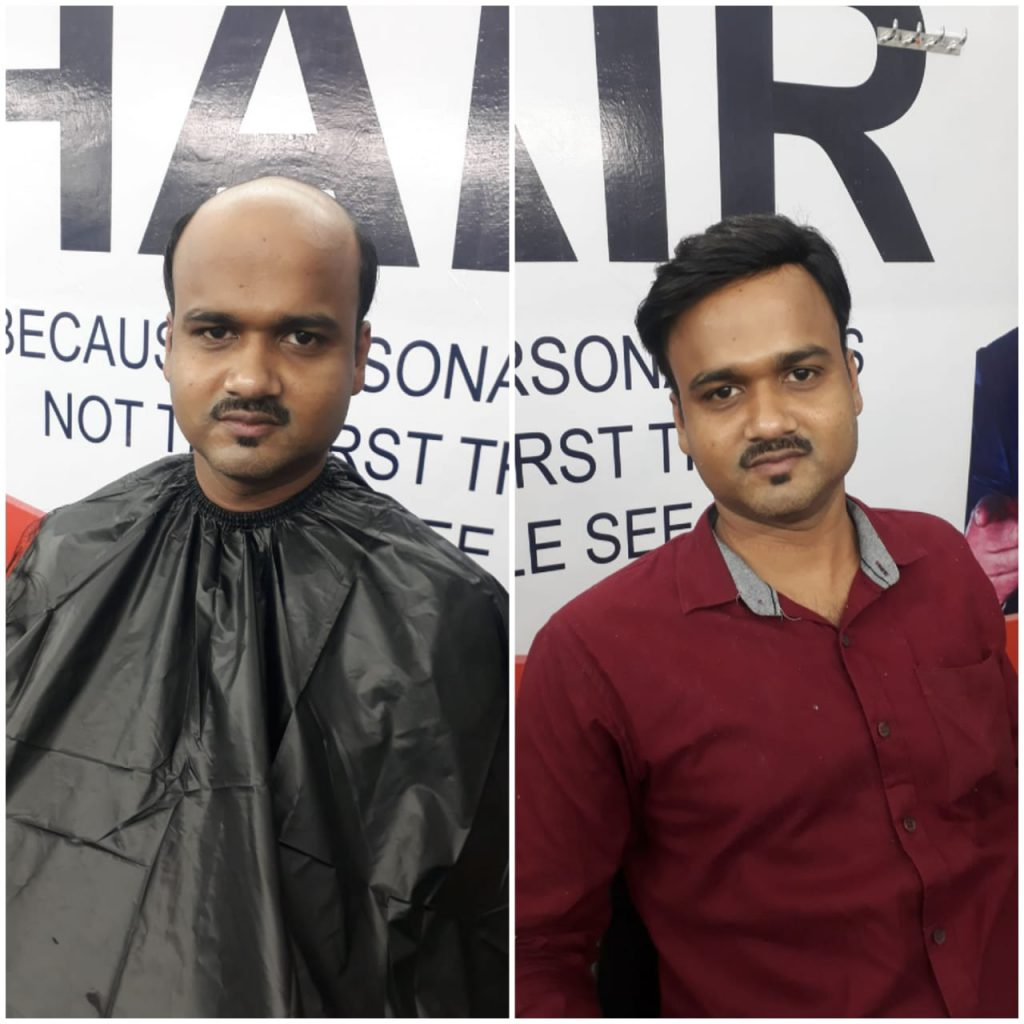 Hair Fix Solution,best hair fixing service in cuttack,bhubaneswar,odisha