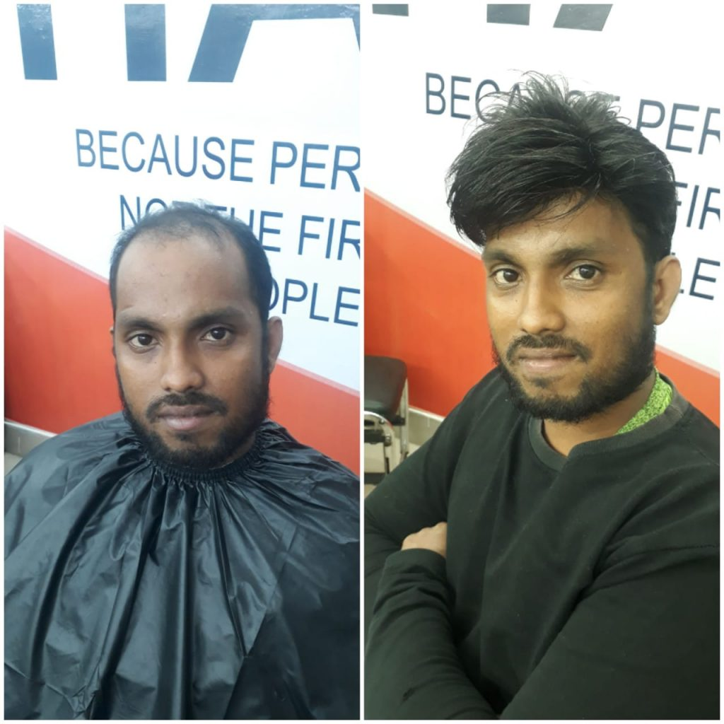 Hair Patch Work in Bhubaneswar
