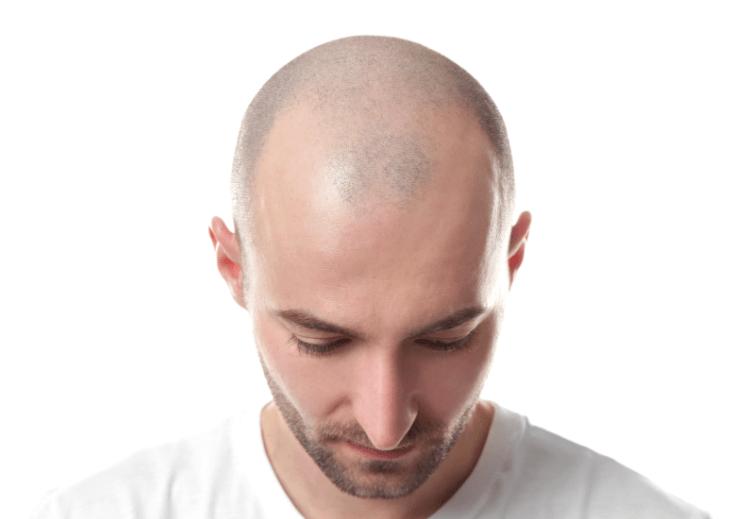 hair-wig-in-paradeep
